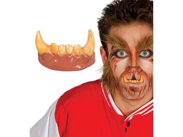 Werwolfgebiss